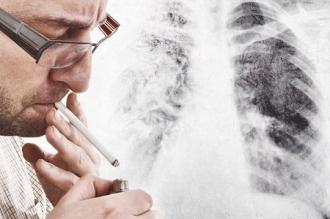 Pierderi economice provocate de fumat